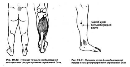 болят ноги икры и пятки